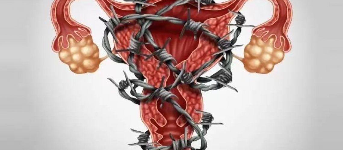 Visa ilustrar de modo figurativo a Endometriose